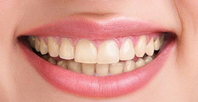sbiancamento dentale prima